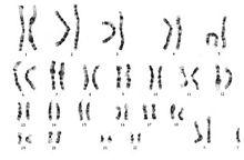 Neurogenetics - Wikipedia