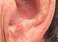 Actinic keratosis on ear.JPG