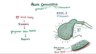 ملف:Acute cholecystitis.webm