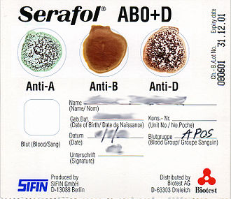 Agglutination (biology) - The 'bedside card' method of blood typing, in this case using a Serafol card. The result is blood group A positive.