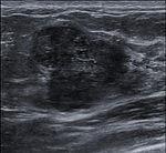 Breast US Fibroadenoma 0531093326375 Nevit.jpg