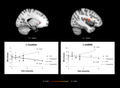 CFS-brain-activity-salientnetwork.png