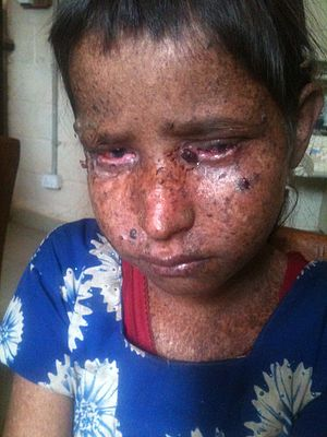 Child suffering from Xeroderma Pigmentosum in Rukum,Nepal