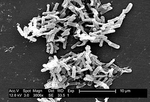 Scanning electron micrograph of Clostridium di...
