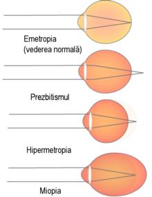 Ochelari cu defecte vizuale, Lentile - AstroOptica