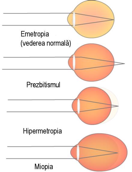 hipermetropia la om este corectată produse și vitamine pentru vedere