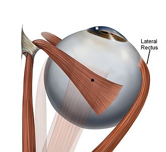 Lateral rectus muscle - Text indicates Lateral Rectus