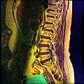 Lumbosacral MRI case 05 05.jpg