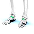 Navicular bone06.png