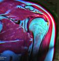 Shoulder MRI 115200 rgbca fspd t2 t1 59F.png