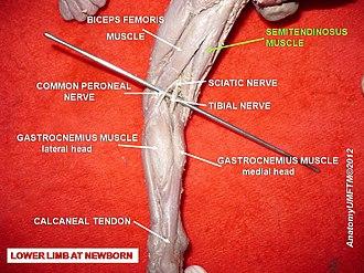 Semitendinosus muscle - Image: Slide 2i