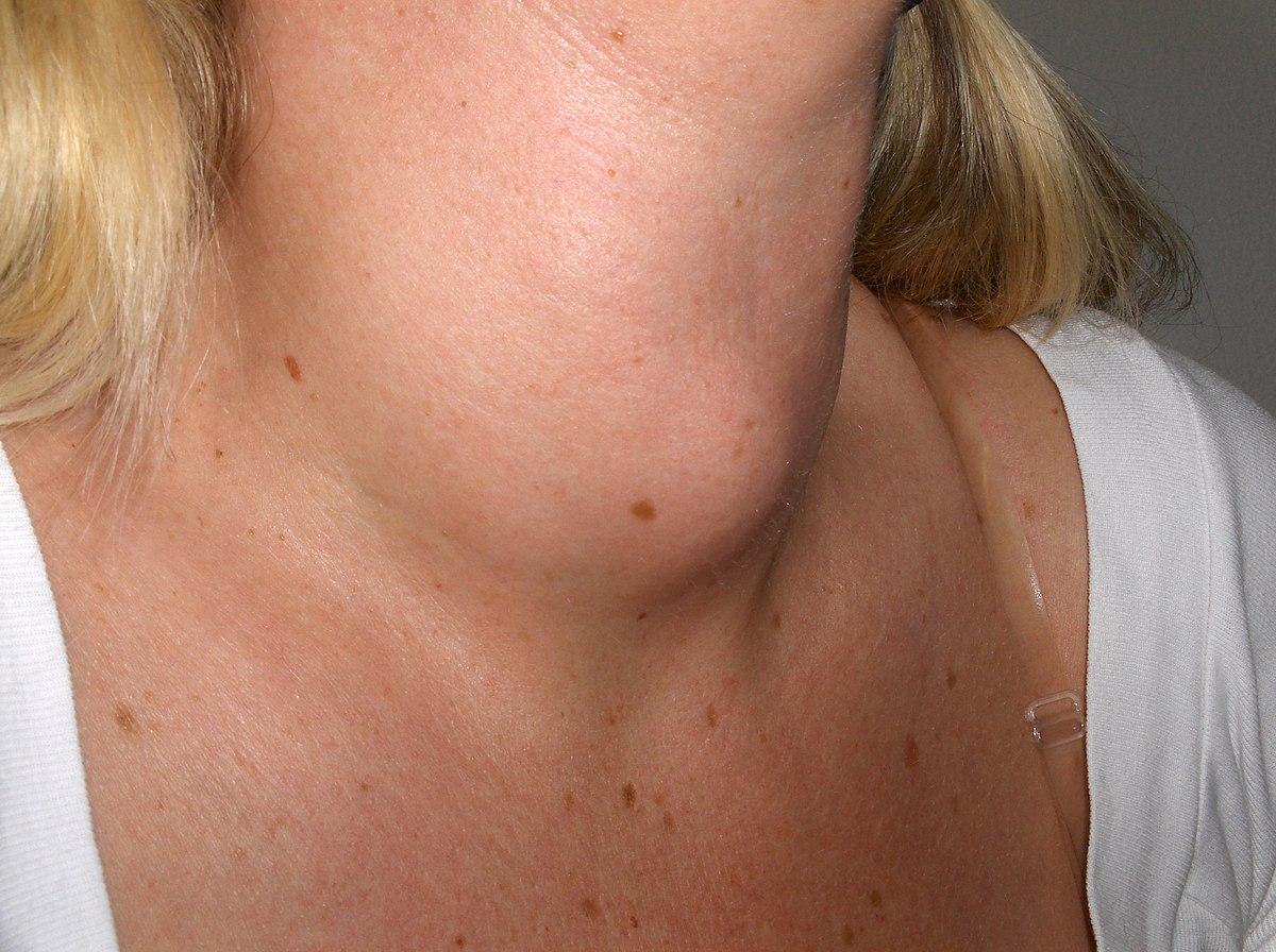 Многоузловой зоб щитовидной железы – симптомы рекомендации