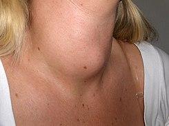 cuello con glándula tiroides aumentada