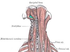 Vyznačené trigonum suboccipitale.