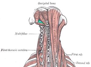 Suboccipital nerve - Image: Suboccipital triangle