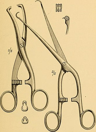 Vulsellum - Two forms of vulsellum forceps