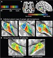 Tonotopic maps in human auditory cortex.jpg