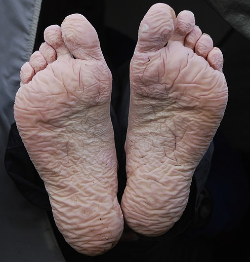 File:Trench foot.jpg