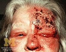 Can you get a ringworm in the mouth? - weknowtheanswer.com