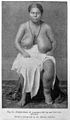 Tropical Diseases, Elephantiasis of mammae. Wellcome L0029471.jpg