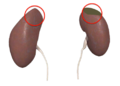 Tumor on the Kidney.png