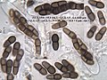 2016-06-04 Abrothallus parmeliarum (Sommerf.) Arnold 624110.jpg
