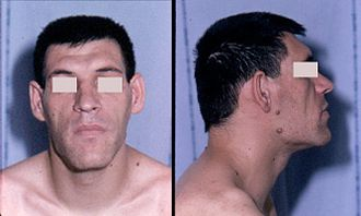 Skull bossing - Skull bossing; in this case frontal bossing presents as a protuberance of the frontal bones and an enlarged brow ridge caused by increased growth hormone production associated with acromegaly.