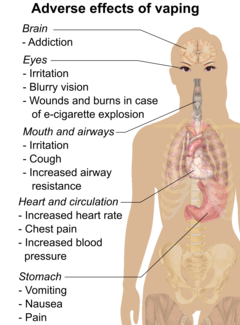 Serious adverse effects of vaping include corneoscleral lacerations or ocular burns or death after e-cigarette explosion. Less serious adverse effects of vaping include eye irritation, blurry vision, dizziness, headache, throat irritation, coughing, increased airway resistance, chest pain, increased blood pressure, increased heart rate, nausea, vomiting, and abdominal pain.