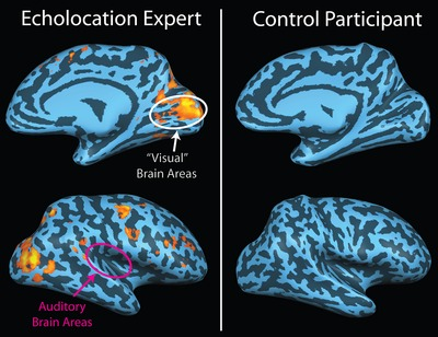 Echo Related Activity In The Brain Of An Early Blind Echolocator Is Shown  On The Left. There Is No Activity Evident In The Brain Of A Sighted Person  (shown ...