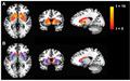 CFS-brain-scan-basal-ganglia-fMRI.png