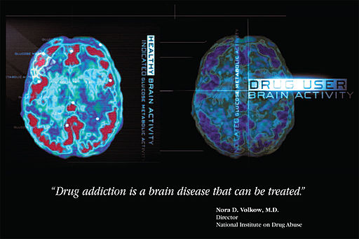 Drug Brain Activity