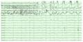 Epilepsy- right hippocampal seizure onset.png
