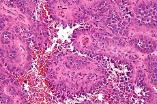Epithelioid angiosarcoma - high mag.jpg