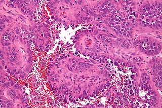 Angiosarcoma malignant Vascular tumor that results in rapidly proliferating, extensively infiltrating anaplastic cells derives from blood vessels and derived from the lining of irregular blood-filled spaces