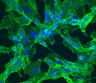CD151 - Fibrosarcoma cells, reportedly stained with an antibody binding to CD151 (green) and a dye for the nucleus (blue).