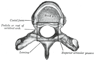 Vertebral foramen - A typical thoracic vertebra, viewed from above. (Vertebral foramen is the large hole at the center.)