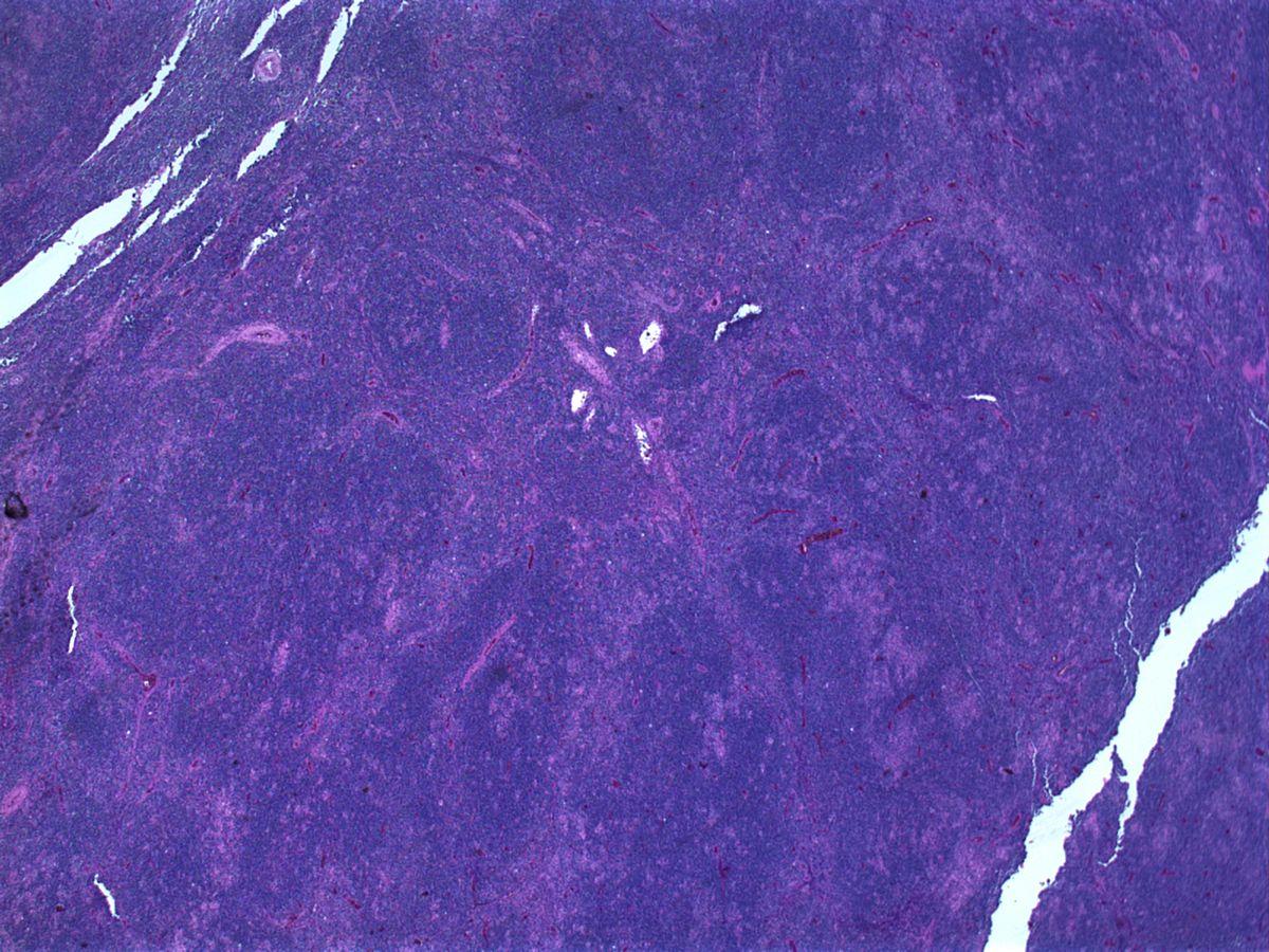 lymphoma - photo #42