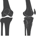 Knee skeleton lateral anterior views.svg