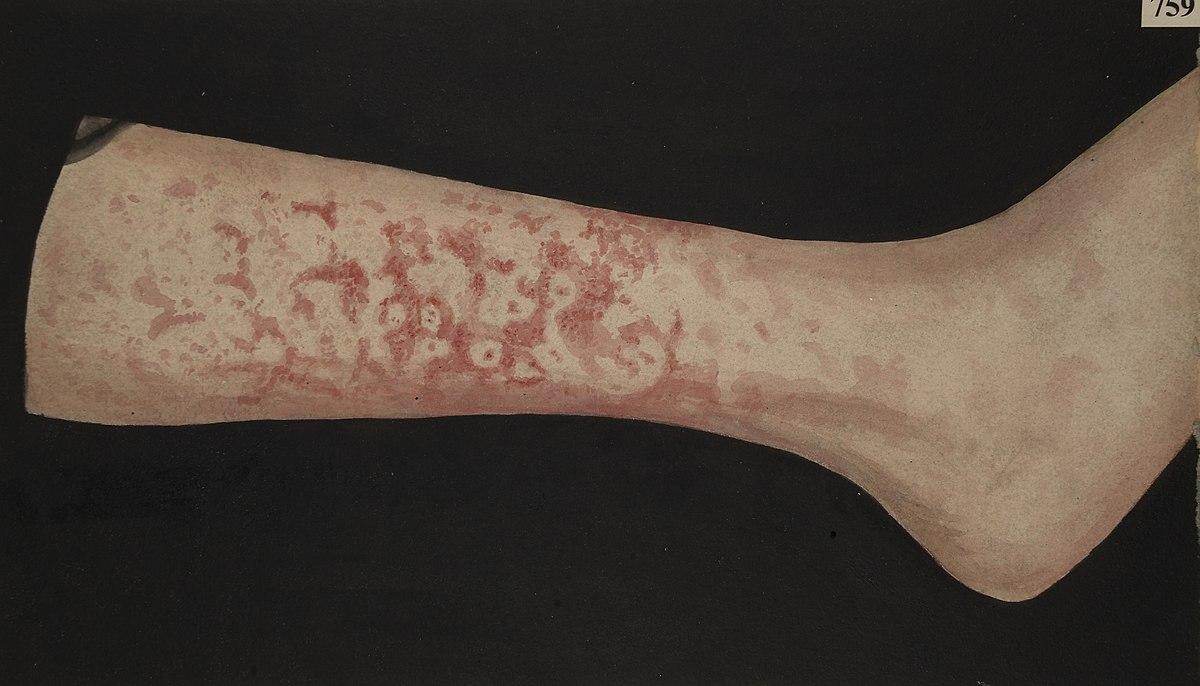 Leg with erythema marginatum Wellcome L0061869.jpg
