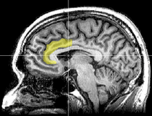 MRI image highlighting anterior cingulate cortex