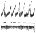PSM V81 D310 Intragastric oscillations recorded by a pneumograph.png