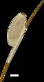 Pediculus humanus egg (01).png