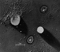 Phyllis Margaret Rountree Electron Micrograph.jpg