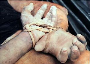 Putrefaction - Putrefaction in human hands after several days underwater in Florida, United States