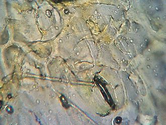 Rust (fungus) - Rust hypha attacking stoma (1600x magnification)