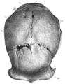 Sinanthropus Skull XII norma verticalis.png