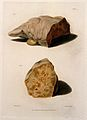 Two sections of diseased liver. Coloured mezzotint by W. Say Wellcome V0009749ER.jpg