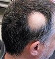 Alopecia areata 1.jpg