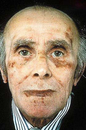 Amyloid fibril formation and classic facial features of AL amyloidosis.jpg