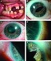 Axenfeld syndrome.jpg